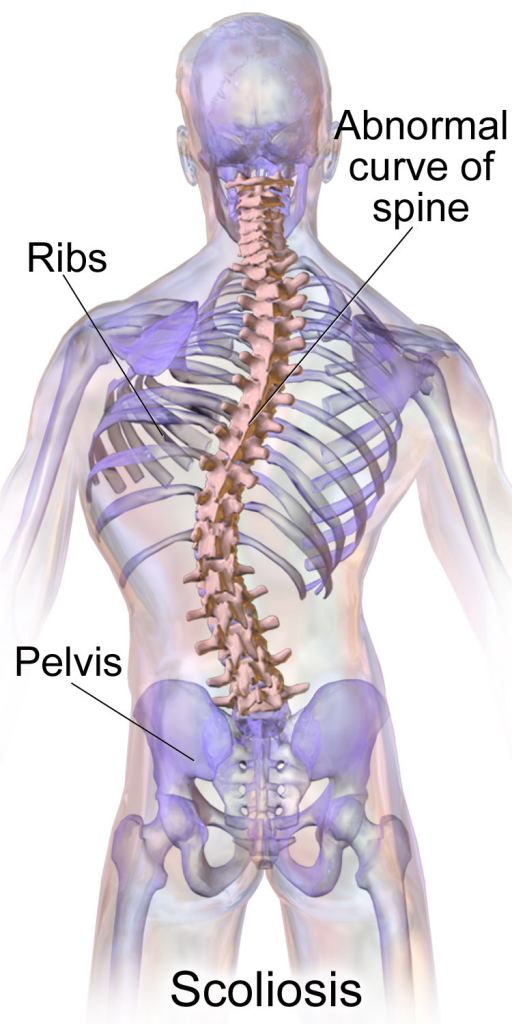 How Scoliosis Can Be Prevented?